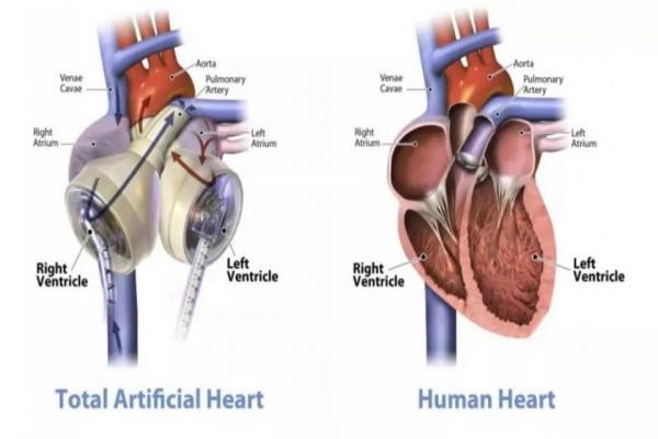 'Giấc mơ bất tử' sẽ thành hiện thực nhờ trái tim nhân tạo?