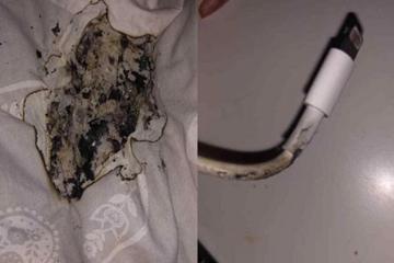 Thiếu nữ bỏng mặt do sạc iPhone phát nổ