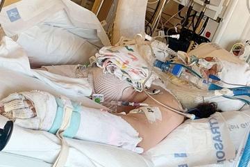 Bé gái bị bỏng nặng do làm theo video trên TikTok
