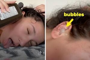 Trào lưu đổ oxy già vào tai tiềm ẩn nguy hiểm trên TikTok